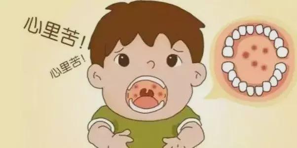 疱疹性咽峡炎